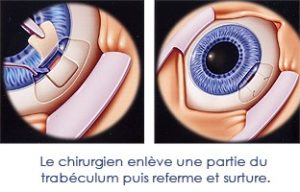 chirurgie glaucome